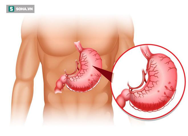 Tại sao bệnh dạ dày lại có thể tiến triển thành ung thư: Nhiều người không chú ý điều này - Ảnh 1.