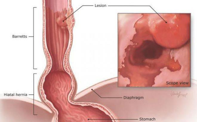 Bác sĩ khuyến cáo 3 yếu tố phổ biến có thể gây ung thư thực quản, ai cũng nên tránh