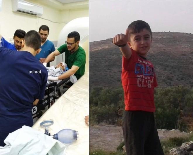 100 mảnh đạn trong đầu một cậu bé Palestine: Sự thật về đạn cao su của lính Israel? - Ảnh 1.