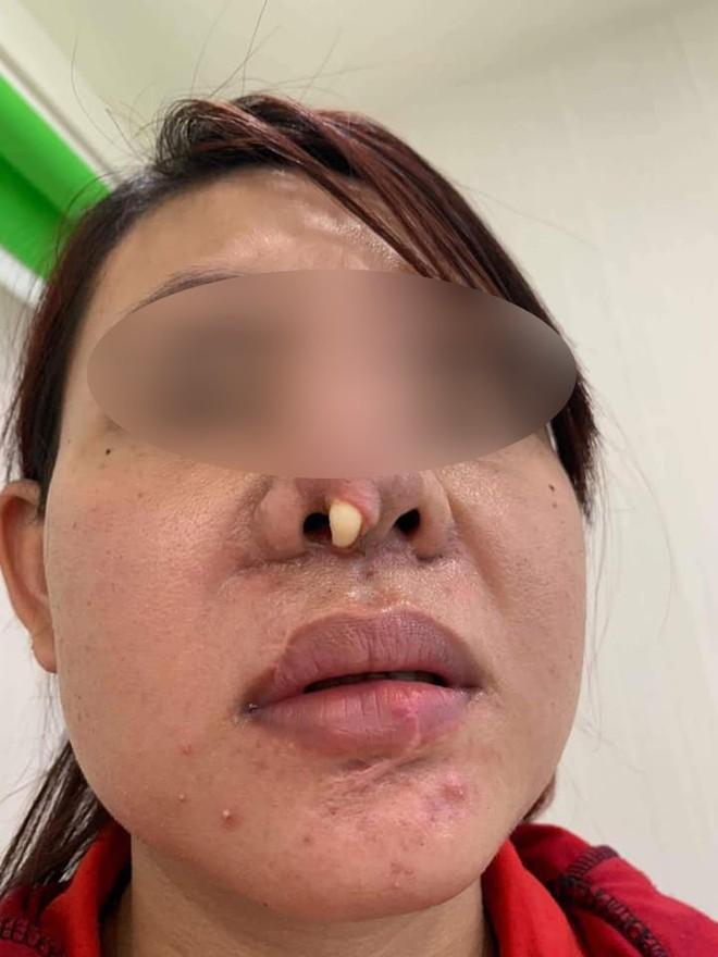 Góc kinh dị: Bà mẹ trẻ đi nâng mũi, nhưng bị lòi cả sụn ra ngoài khiến hội chị em hoang mang sợ hãi - ảnh 2