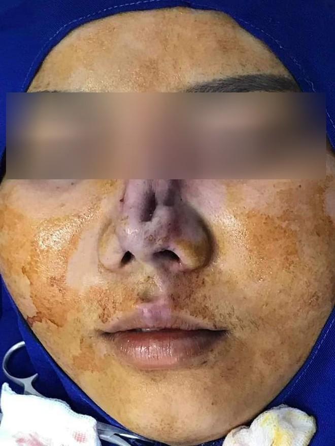 Góc kinh dị: Bà mẹ trẻ đi nâng mũi, nhưng bị lòi cả sụn ra ngoài khiến hội chị em hoang mang sợ hãi - ảnh 3