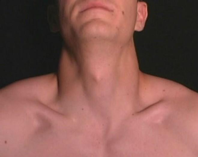 2 bộ phận cơ thể nam giới to hơn bình thường sẽ rất nguy hiểm: Nếu bạn có thì nên lưu ý - Ảnh 2.