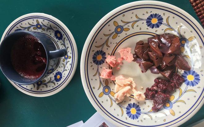 Câu chuyện ăn uống kỳ lạ: Gia đình 3 người đều ăn thịt sống, không ăn rau củ quả