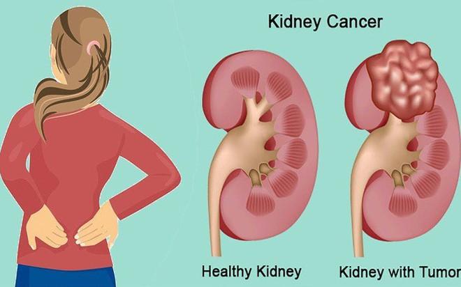 Đau thắt lưng âm ỉ, có thể bạn đã mắc ung thư thận - Ảnh 1.