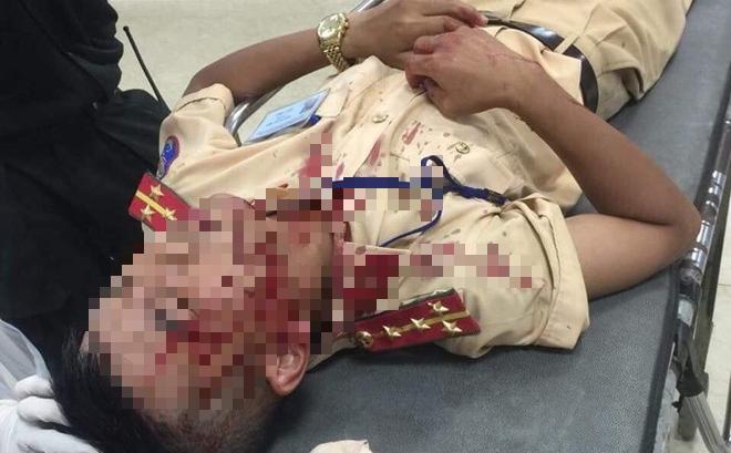 Kẻ cầm đá tấn công khiến đại uý CSGT bất tỉnh khai do nóng giận vì bị lập biên bản