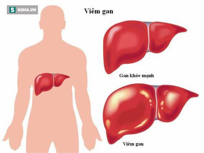 BS nói về lộ trình viêm gan - xơ gan - ung thư gan: Mỗi người cần làm 4 việc để né bệnh - Ảnh 1.