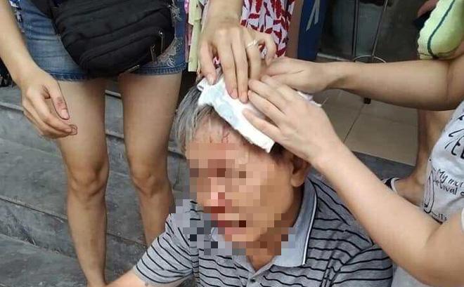 Hà Nội: Đang dắt cháu đi dạo, cụ ông bị ổ khoá rơi trúng đầu