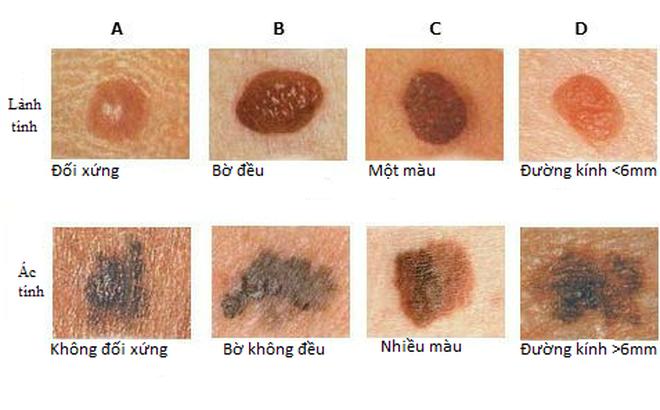 Khi nào nốt ruồi có nguy cơ thành ung thư: Ghi nhớ dấu hiệu ABCDE ngay lập tức