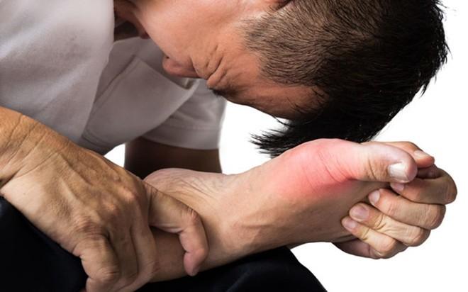 9 nguyên nhân làm tăng nguy cơ mắc bệnh gút - Ảnh 6.