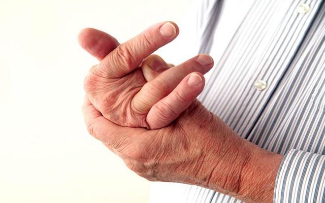 9 nguyên nhân làm tăng nguy cơ mắc bệnh gút - Ảnh 7.
