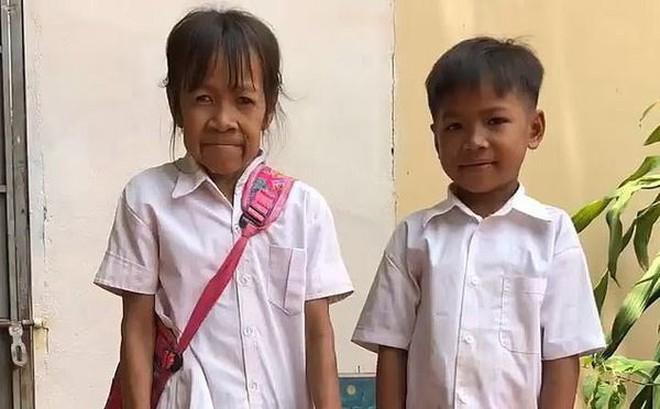 Mắc bệnh lạ, bé gái 10 tuổi có khuôn mặt như cụ bà 60