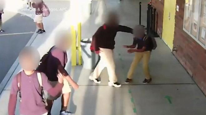 Cậu bé bị bắt nạt đến mức tổn thương não vĩnh viễn, bằng chứng có đủ nhưng thái độ của nhà trường lại gây phẫn nộ hơn cả - Ảnh 1.