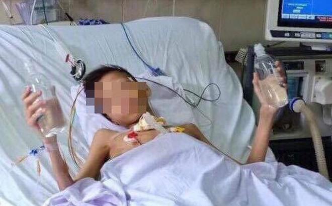 Ca ghép phổi đầu tiên ở Việt Nam: 5 tỷ đồng và 8 tháng đợi chờ dấu hiệu tiến triển