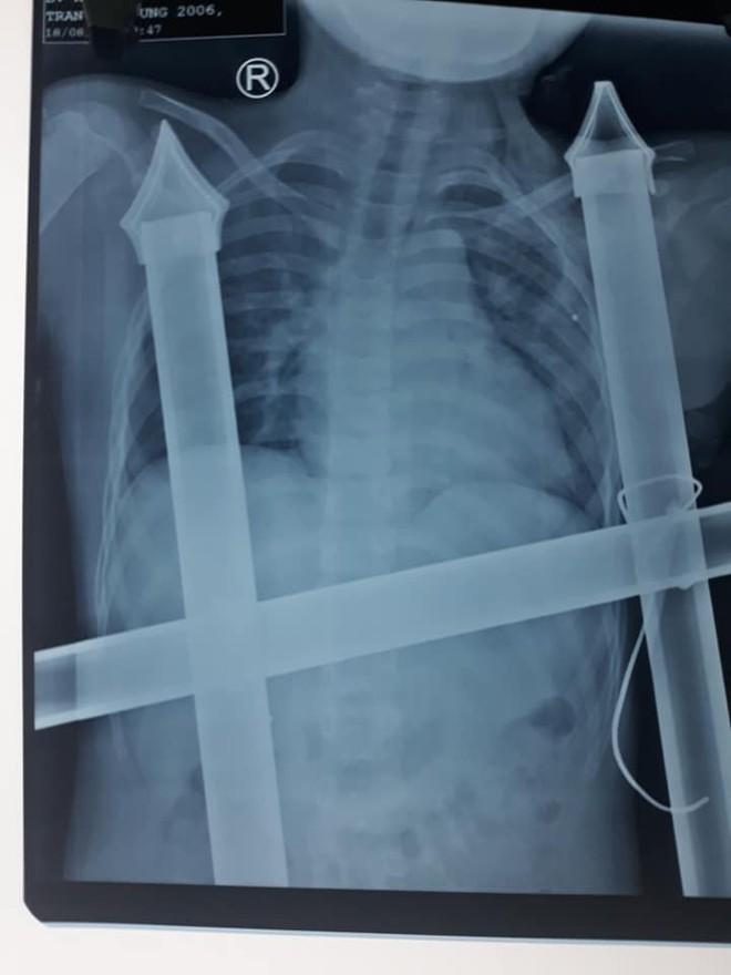 Trèo cây ngã xuống, cậu bé 13 tuổi bị chông hàng rào đâm xuyên dọc ngực - ảnh 2