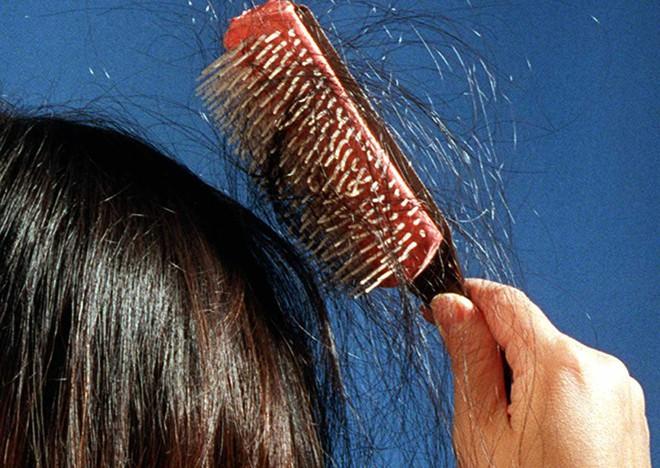Áp lực thi cử quá lớn khiến bé gái 13 tuổi học đến hói đầu, lông mi, lông mày cũng rụng sạch - Ảnh 1.