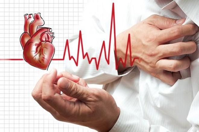 Đột quỵ thường xảy ra rất đột ngột, nếu có dấu hiệu này cần gọi cấp cứu ngay! - Ảnh 2.
