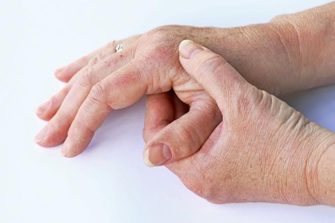 Những dấu hiệu bất thường trên cơ thể tố cáo sức khỏe bạn đang có vấn đề trầm trọng - Ảnh 8.