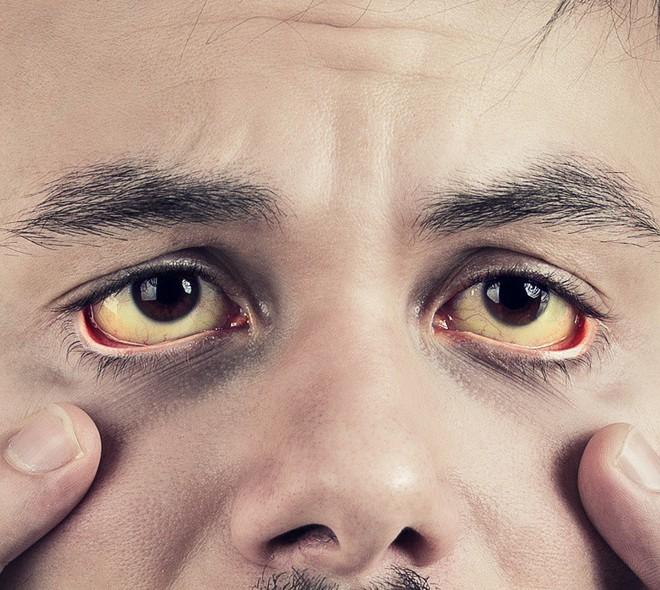 Những dấu hiệu bất thường trên cơ thể tố cáo sức khỏe bạn đang có vấn đề trầm trọng - Ảnh 9.