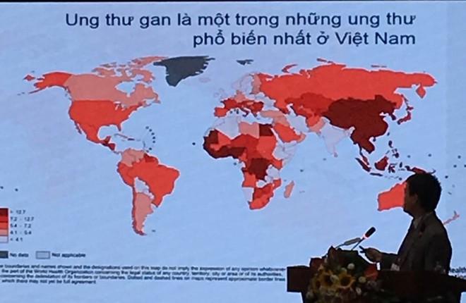 Căn bệnh ung thư tăng chóng mặt ở Việt Nam: Đây là 5 dấu hiệu cần nhớ - Ảnh 1.
