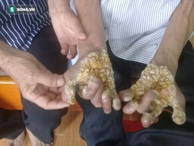 Người cây ở Ninh Bình: Số phận cay đắng vì mắc căn bệnh ngoài da khủng kiếp nhất thế giới - Ảnh 5.