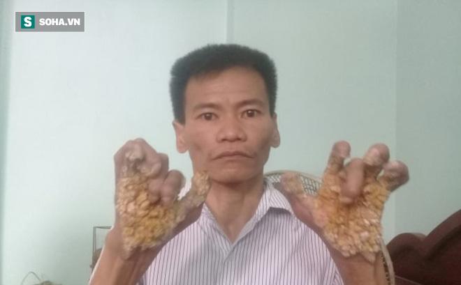 Người cây ở Ninh Bình: Số phận cay đắng vì mắc căn bệnh ngoài da khủng khiếp nhất thế giới