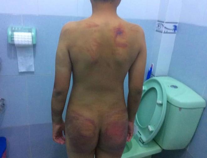 Bé trai 11 tuổi bị 1 người tu hành đánh dã man - Ảnh 5.