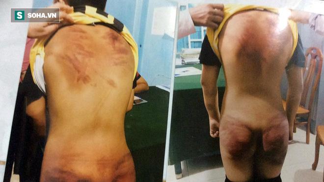 Người mặc áo tu hành tra tấn dã man bé trai 11 tuổi: Ông ta đánh đập con tôi 3 ngày liên tục - Ảnh 3.