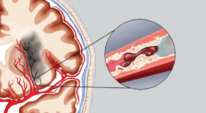 BS cảnh báo 4 dấu hiệu của chứng tắc mạch máu: Cần chú ý đề phòng tử vong bất ngờ - Ảnh 2.