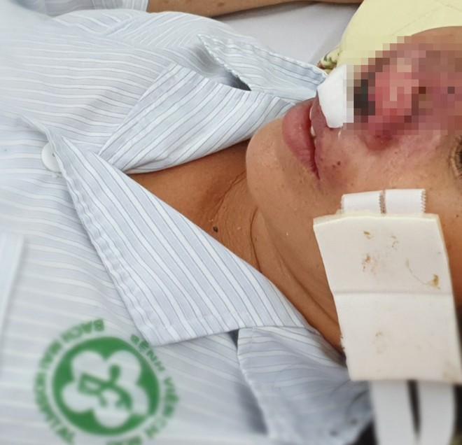 Nguy cơ bùng phát căn bệnh truyền nhiễm nguy hiểm bị bỏ quên đe dọa tính mạng người Việt - Ảnh 1.