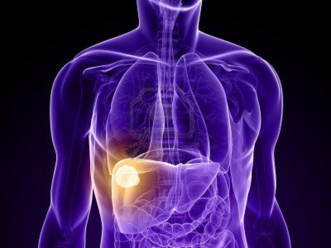 Món ăn 3 màu sắc - chìa khóa phòng ngừa ung thư gan: Mỗi gia đình đều nên tận dụng - Ảnh 1.