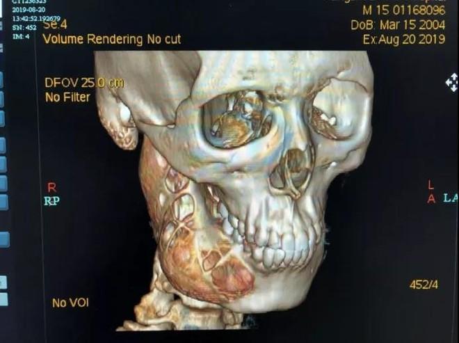 Đau răng 1 năm mới đi khám, cậu bé 15 tuổi khiến bác sĩ sốc khi bị ăn mòn 1 nửa xương hàm phải do ung thư - Ảnh 1.