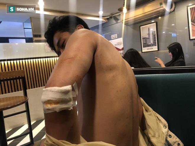 2 Việt kiều tố bị nhân viên bãi giữ xe đánh hội đồng ở Sài Gòn vì mất thẻ xe - Ảnh 1.