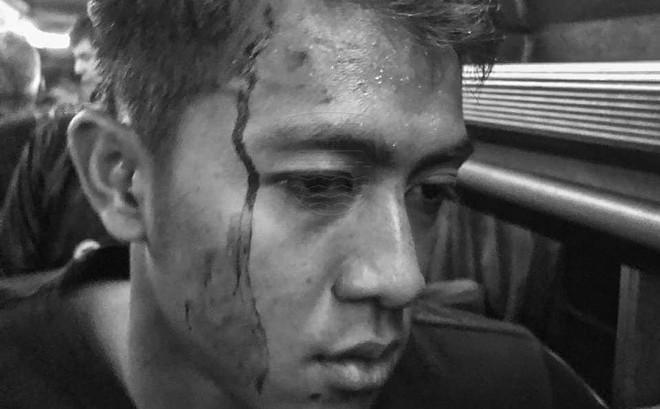 Bóng đá Indonesia lại rúng động: Cầu thủ bị CĐV ném đá vỡ đầu, thoát chết trong gang tấc