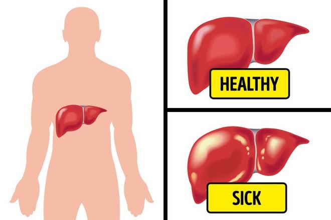 Đầy hơi, chướng bụng lâu ngày - dấu hiệu cảnh báo bệnh nguy hiểm, thậm chí ung thư - Ảnh 2.