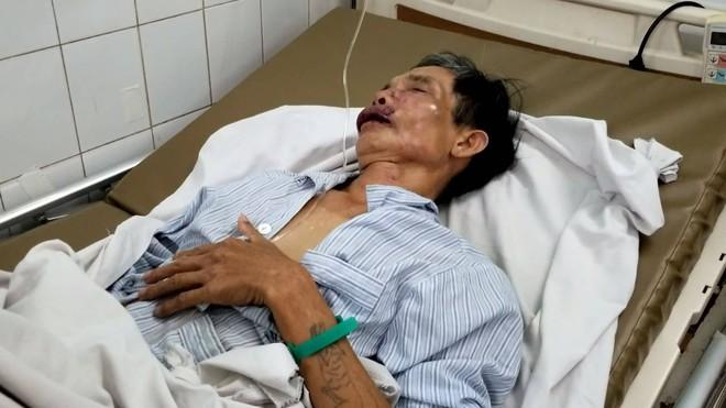 Phóng viên Tạp chí Luật sư Việt Nam bị đánh xuất huyết não - Ảnh 1.