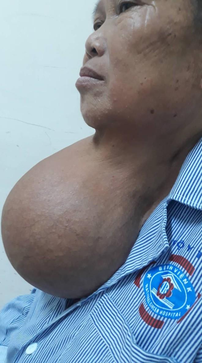 Lấy thành công khối u khủng nặng 3,2kg đeo đẳng ở cổ người phụ nữ hơn 20 năm - Ảnh 2.