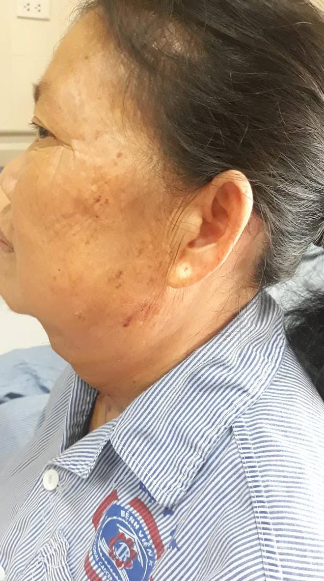 Lấy thành công khối u khủng nặng 3,2kg đeo đẳng ở cổ người phụ nữ hơn 20 năm - Ảnh 3.