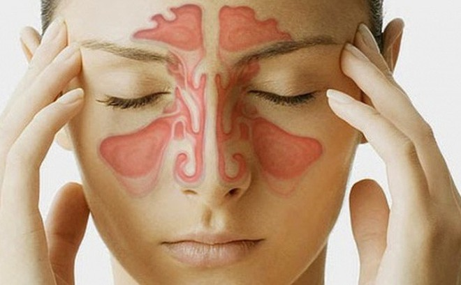 Bệnh viêm mũi