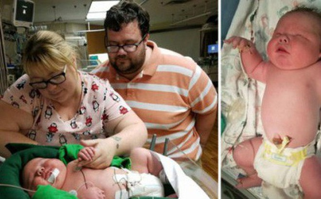 """Bác sĩ 30 năm tay nghề """"sốc nặng""""khi đỡ đẻ cho một trẻ sơ sinh khổng lồ nặng gần 7 kilogram"""