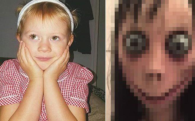 Thêm một đứa trẻ 7 tuổi đập đầu vào tường để tìm đến cái chết vì bị ám ảnh bởi quái vật kinh dị Momo trên Youtube Kids