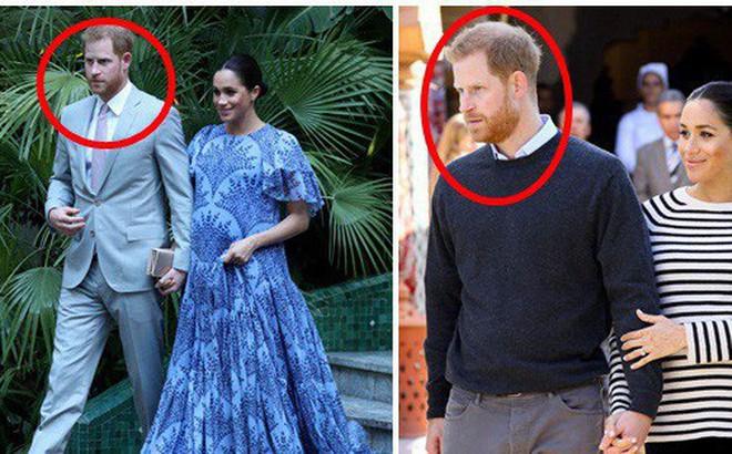 Lý do thực sự đằng sau gương mặt khó chịu, không một nụ cười của Hoàng tử Harry bên cạnh vợ bầu trong suốt chuyến công du vừa qua