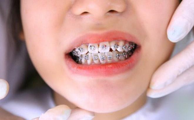 Niềng răng để mong được 'lột xác', cô gái trẻ nào ngờ phải nhận về cái kết đắng ngắt