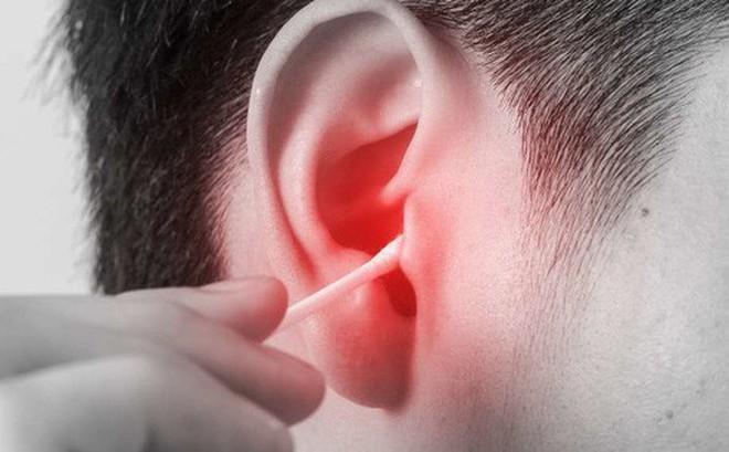 Người đàn ông bị nhiễm trùng não suốt 5 năm chỉ vì sơ suất từ cách vệ sinh tai ai cũng làm này