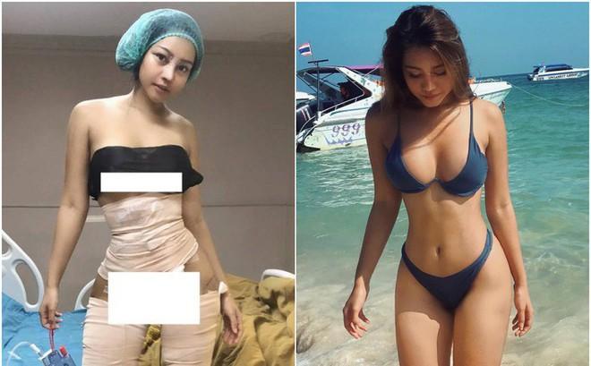 Hot girl bốc lửa Thái Lan bất ngờ công khai ảnh phẫu thuật để có eo con kiến, điều đáng nói đây không phải lần đầu cô lột xác