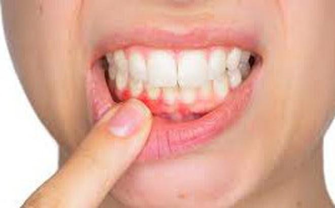 Viêm nướu răng - Bệnh tuy nhẹ nhưng chớ xem thường