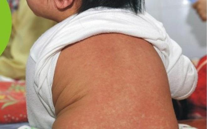 Hà Nội: Số mắc sởi vẫn cao và có xu hướng tăng, cần tiêm vắc xin phòng bệnh