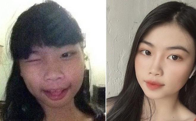 """Dậy thì thành công đến độ bị nghi PTTM, girl xinh 2001 tiết lộ bí quyết thực sự giúp mình """"lột xác"""""""