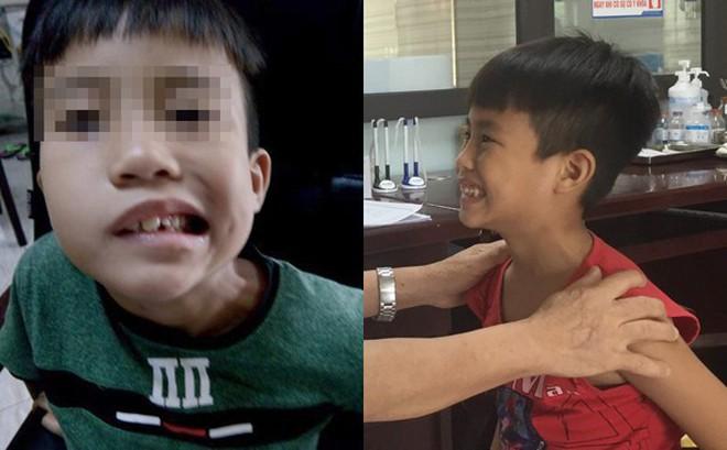Bé trai 8 tuổi liệt mặt, méo miệng do thói quen dùng điều hòa sai cách