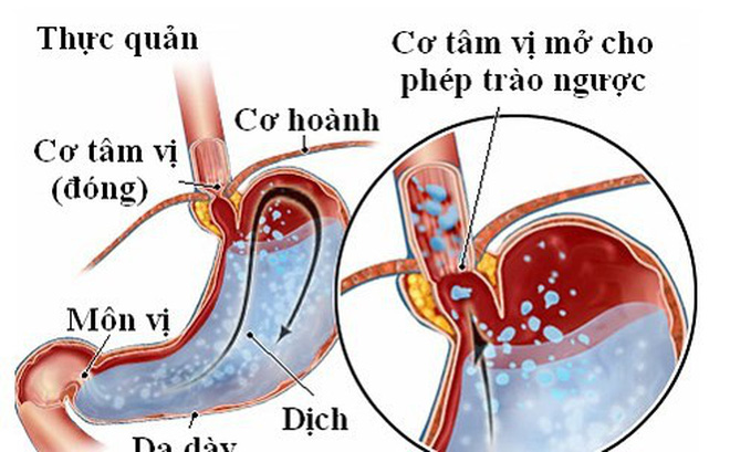 Bài thuốc trị bệnh trào ngược dạ dày thực quản