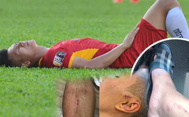 Hãi hùng với chấn thương của các cầu thủ thi đấu V.League: Ai nói bóng đá Việt nhàm chán và thiếu lửa?